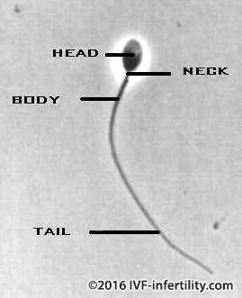 The human sperm can be one of three states - x, y or wasted.